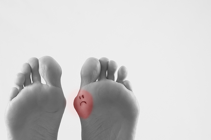 When Is Bunion Surgery Needed?